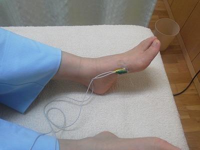 不妊症に悩む方の四十肩もささない鍼を使って施術します